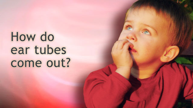 HIE Multimedia - How do ear tubes come out?