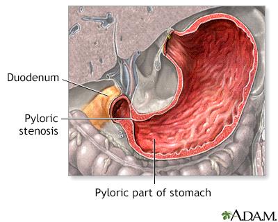 Pyloric stenosis - infant