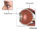 Eye muscle repair - normal anatomy