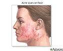 Skin smoothing surgery - series - Indication