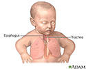 Tracheoesophageal fistula repair - series