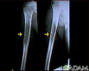 Ewing sarcoma - X-ray