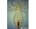 Body louse