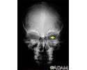 Neurofibromatosis I, enlarged optic foramen