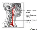 Carotid artery surgery - series