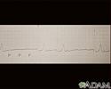 Atrioventricular block - ECG tracing