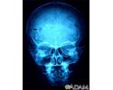 Eosinophilic granuloma - X-ray of the skull