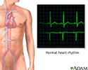 Normal heart rhythm