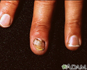 Nail infection - candidal