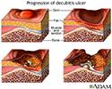 Progression of a decubitis ulcer
