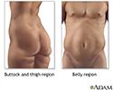 Liposuction - series