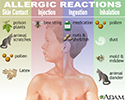 Allergic reactions