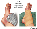 Early treatment of injury