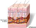 Fat layer in skin