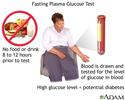 Fasting glucose tolerance test