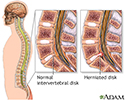 Microdiskectomy - series