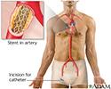 Coronary artery stent