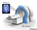 Head MRI