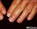 Half and half nails