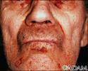 Amyloidosis on the face
