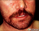 Dermatitis - seborrheic on the face