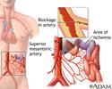 Mesenteric artery ischemia and infarction