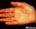 Vasculitis on the palm