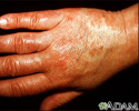 Vasculitis - urticarial on the hand