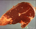 Hodgkin's disease, liver involvement