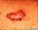 Basal cell carcinoma - close-up
