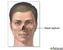 Septoplasty  - series