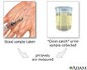 PH urine test