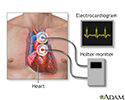 Holter heart monitor