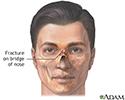 Nasal fracture