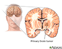 Primary brain tumor