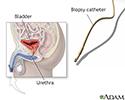Bladder biopsy