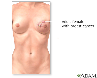 Breast and Nipple Discharge: What It Could Mean