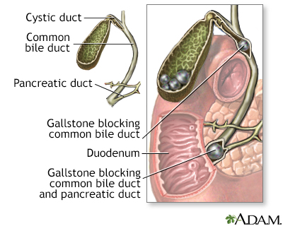 In-Depth Reports - Gallstones and gallbladder disease
