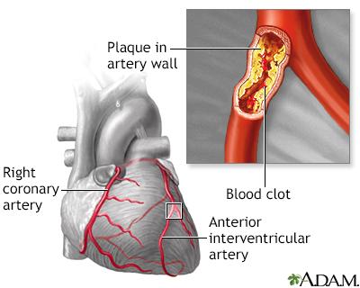 In-Depth Reports - Heart failure