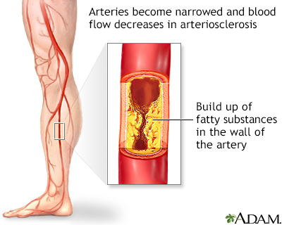 Angioplasty and stent placement - peripheral arteries - discharge