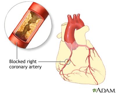 coronary artery balloon angioplasty series