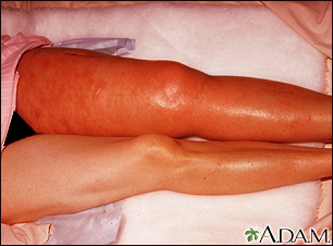Deep venous thrombosis - iliofemoral