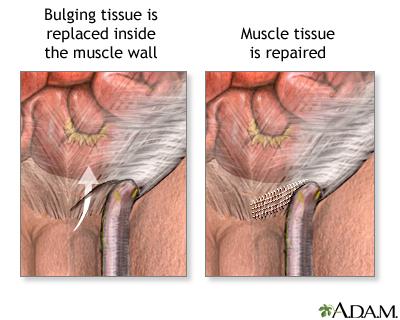 Inguinal hernia repair - series