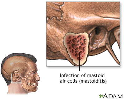 Mastoiditis - Indications