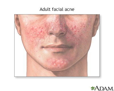 Adult facial acne