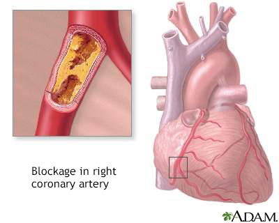 Coronary artery blockage