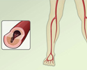 Peripheral artery disease (PAD) - overview