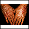 Skin cancer, squamous cell on the hands